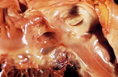 Heart Abscess In Endocarditis Poster by Pr. R. Abelanet - Cnri