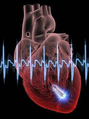 Heart With Leadless Cardiac Pacemaker Poster by Alfred Pasieka