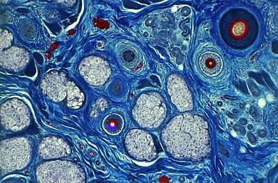 Human Skin Seen Under A Microscope Poster by Dorling Kindersley/uig