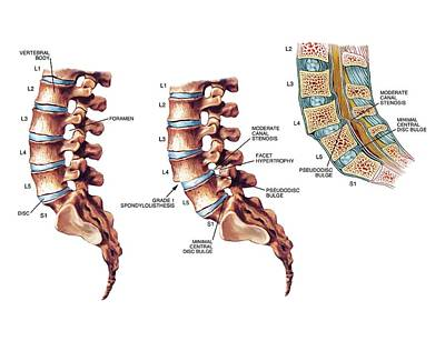 Lumbar Spondylolisthesis Poster by John T. Alesi
