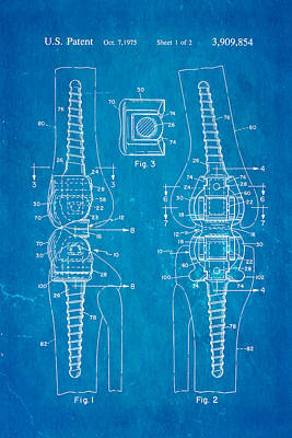 Martinez Knee Implant Prosthesis Patent Art 1974 Blueprint Poster by Ian Monk