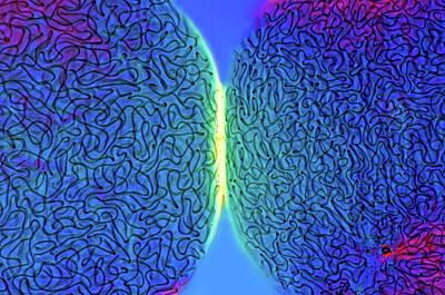 Nostoc Cyanobacteria Poster by Marek Mis