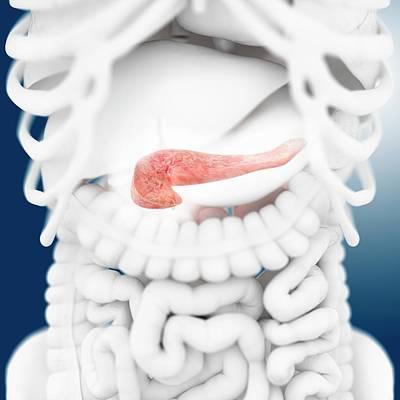 Pancreas Poster by Springer Medizin