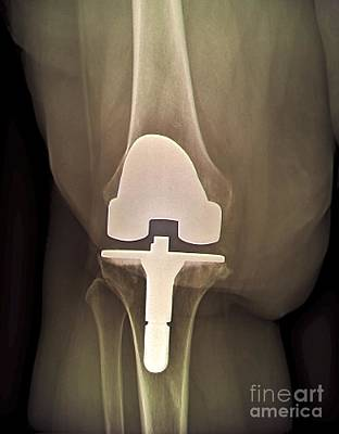 Prosthetic Knee And Obesity, X-ray Poster by Zephyr