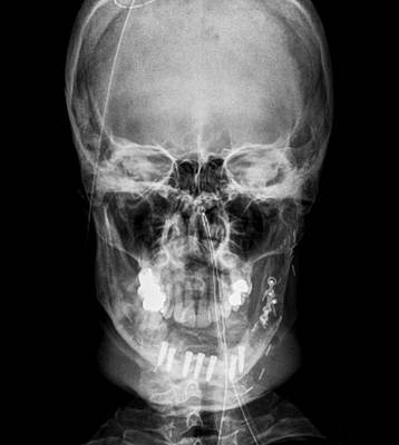 Road Accident Facial Trauma Poster by Zephyr