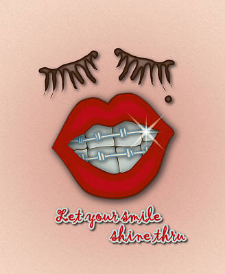 Shiny Braces Red Lips Mole And Thick Eyelashes Poster by Ym Chin