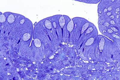 Small Intestine, Light Micrograph Poster by Science Photo Library