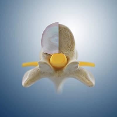 Thoracic Vertebra (t6) Poster by Springer Medizin