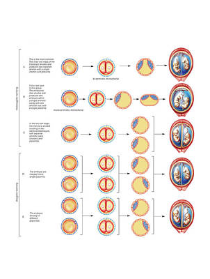 Types Of Twin Poster by Asklepios Medical Atlas