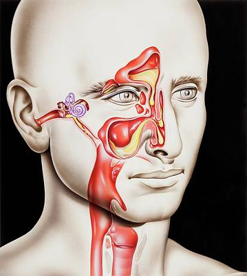 Upper Respiratory Tract Infections Poster by John Bavosi