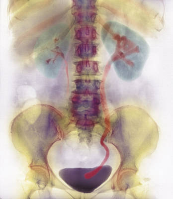 Kidney Stone In Ureter Poster by