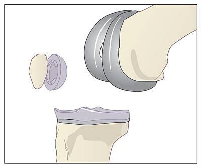Knee Replacement, Artwork Poster by Peter Gardiner