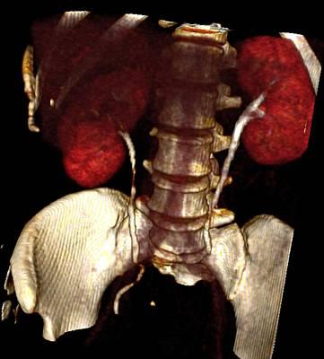 Kidney Damage, Ct Scan Poster by Du Cane Medical Imaging Ltd