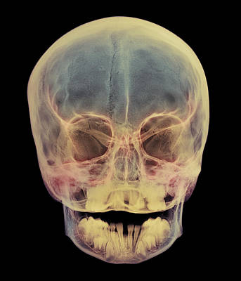 Child's Skull Poster by D. Roberts