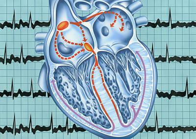 Atrial Fibrillation Poster by John Bavosi