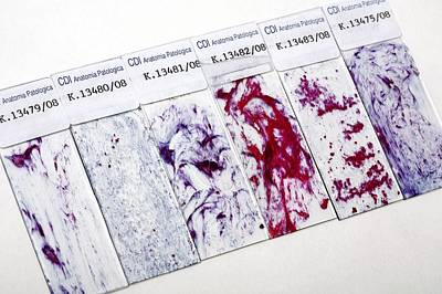 Cervical Smear Slides Poster by Mauro Fermariello