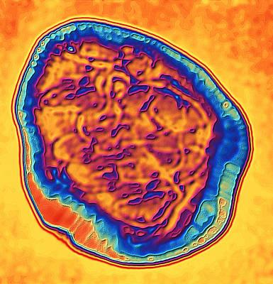 Coloured Tem Of The Measles Virus (morbilli-virus) Poster by Pasieka