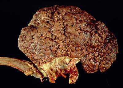 Gross Specimen Of Kidney Scarred By Hypertension Poster by Dr. E. Walker