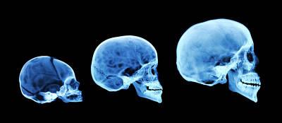 Human Skull Development Poster by D. Roberts