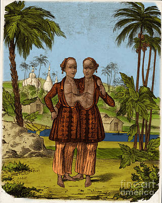 Chang And Eng, Siamese Twins Poster by Science Source