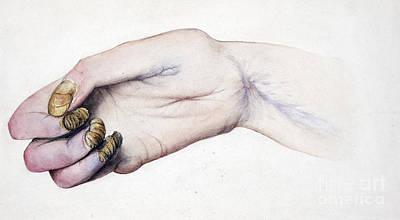 Deformed Hand, Division Of Median Nerve Poster by Wellcome Images