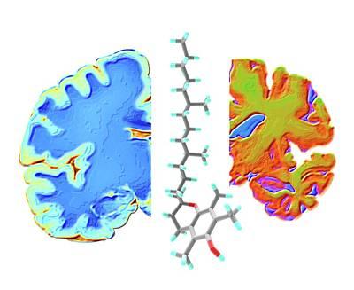 Alzheimers Photograph - Alzheimer's Brain And Vitamin E Molecule by Alfred Pasieka