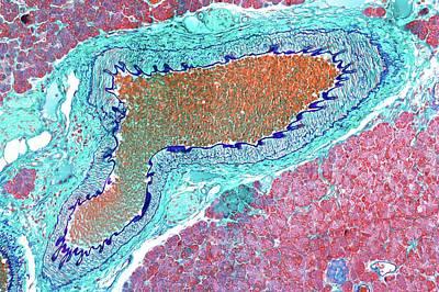 Artery Print by Microscape