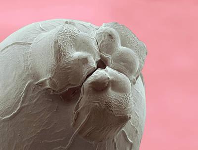 Ascaris Roundworm Print by Thierry Berrod, Mona Lisa Production