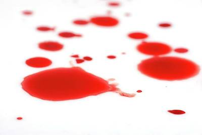 Blood Spatter Print by Cordelia Molloy