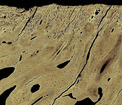 Bone Cross-section Print by Science Photo Library