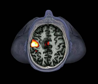 Oncology Photograph - Brain Tumour by Zephyr