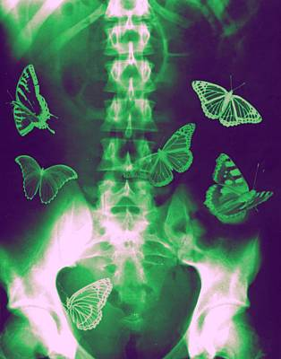 Colourized Photograph - Butterflies In The Stomach by Photostock-israel