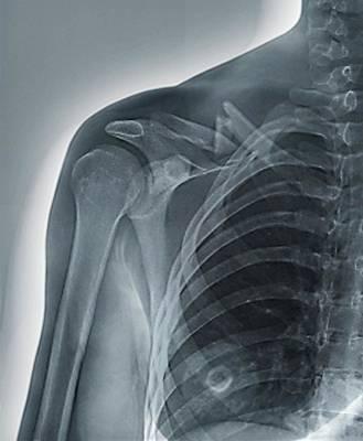 Collar Bone Fracture Print by Zephyr