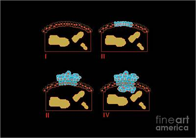 Colon Cancer Stages, Artwork Print by Francis Leroy, Biocosmos