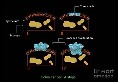 Colon Cancer Stages, Diagram Print by Francis Leroy, Biocosmos