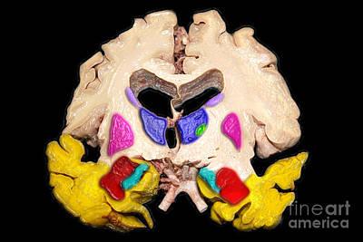 Anatomic Photograph - Color Enhanced Severe Alzheimers Disease by Living Art Enterprises