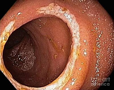 Inflamed Wall Photograph - Crohn's Disease, Endoscopic View by Gastrolab