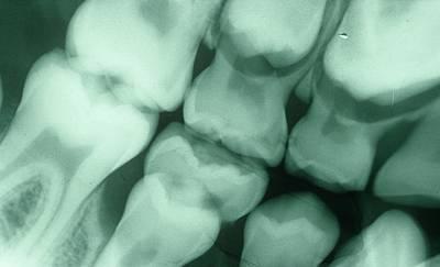 Dental X-ray Print by Dr. J.p. Casteyde - Cnri