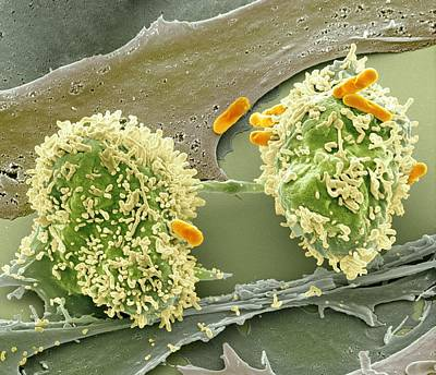 Dividing Cancer Cell, Sem Print by Science Photo Library