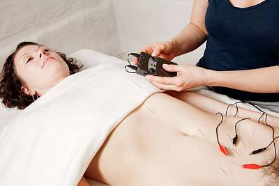 Electroacupuncture Fertility Treatment Print by Thomas Fredberg