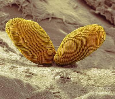 Euglena Flagellate Protozoa, Sem Print by Steve Gschmeissner