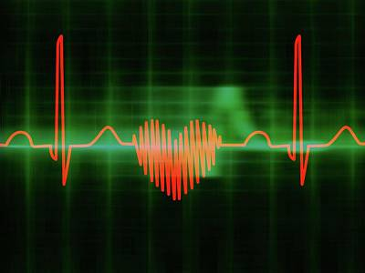 Heart-shaped Ecg Trace Print by Alfred Pasieka