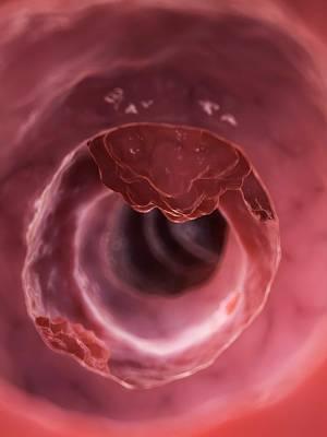 Cancer Photograph - Human Colon Cancer by Sebastian Kaulitzki