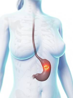 Human Stomach Ulcer Print by Sebastian Kaulitzki
