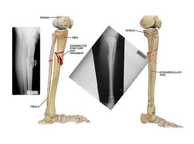 Internal Fixation Of Lower Leg Bones Print by John T. Alesi