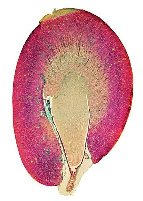 Kidney Print by Dr Keith Wheeler