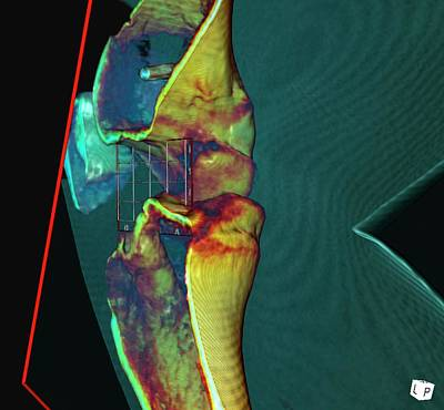 3-dimensional Photograph - Knee Ligament Surgery by D & L Graphics