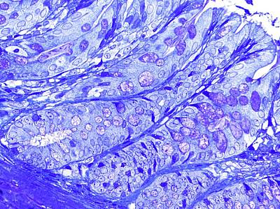 Large Bowel Glands Print by Microscape