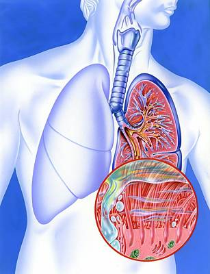 Infection Photograph - Lower Respiratory Tract Infection by John Bavosi