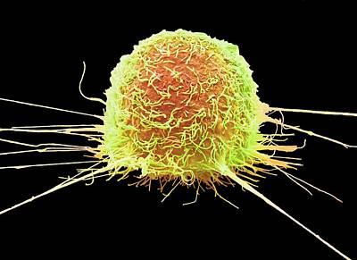 Mouth Cancer Cell Print by Steve Gschmeissner
